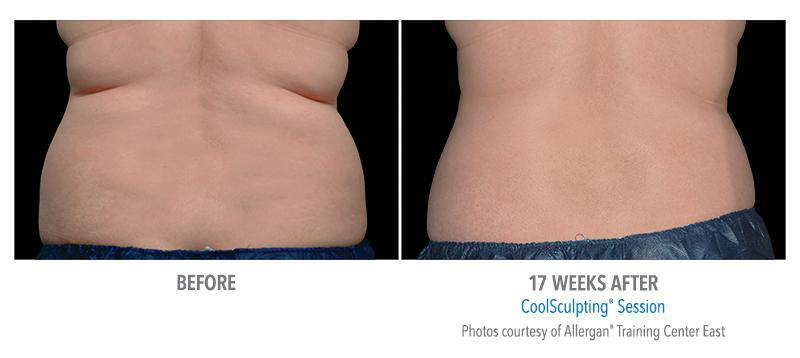 CoolSculpting BxA