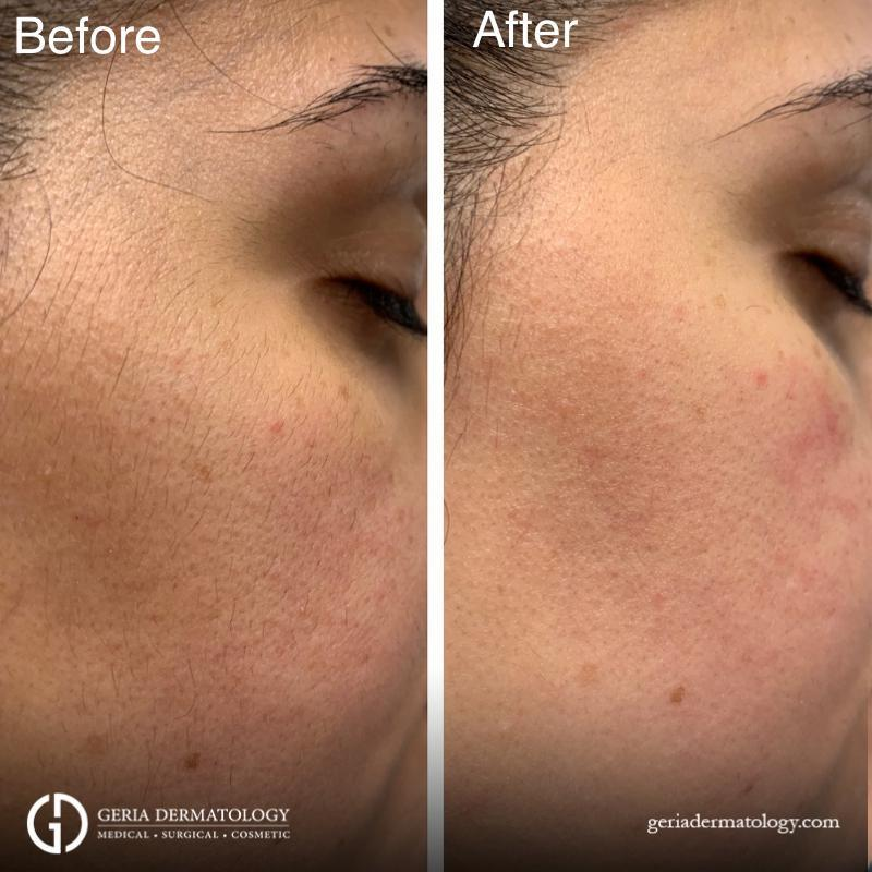 dermaplaning before and after