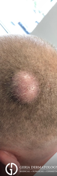 Cyst Removal